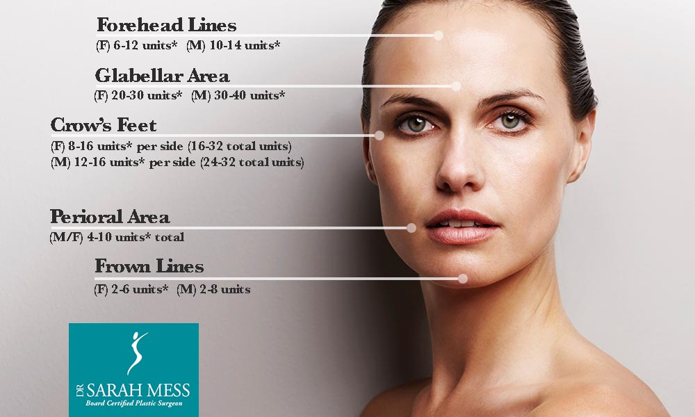 "how botox works How botox works the ""tone"" of a muscle – how floppy or tight it is – depends on  the nerve impulses (messages) which reach the muscle from the brain."